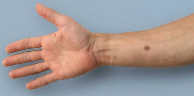 'Biomedical tattoo' could provide early cancer warning: Swiss study