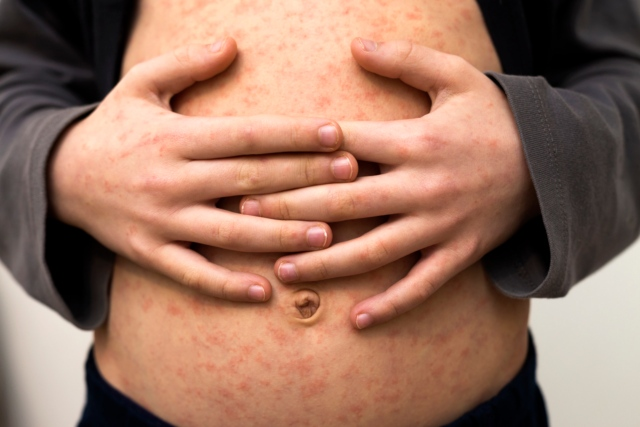 Concern over spike in measles cases in Switzerland